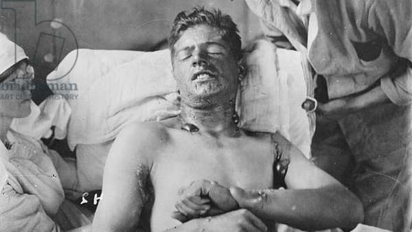 Canadian soldier in a field hospital, with mustard gas burns